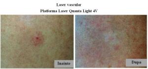 îndepărtarea prin laser varicoseza)