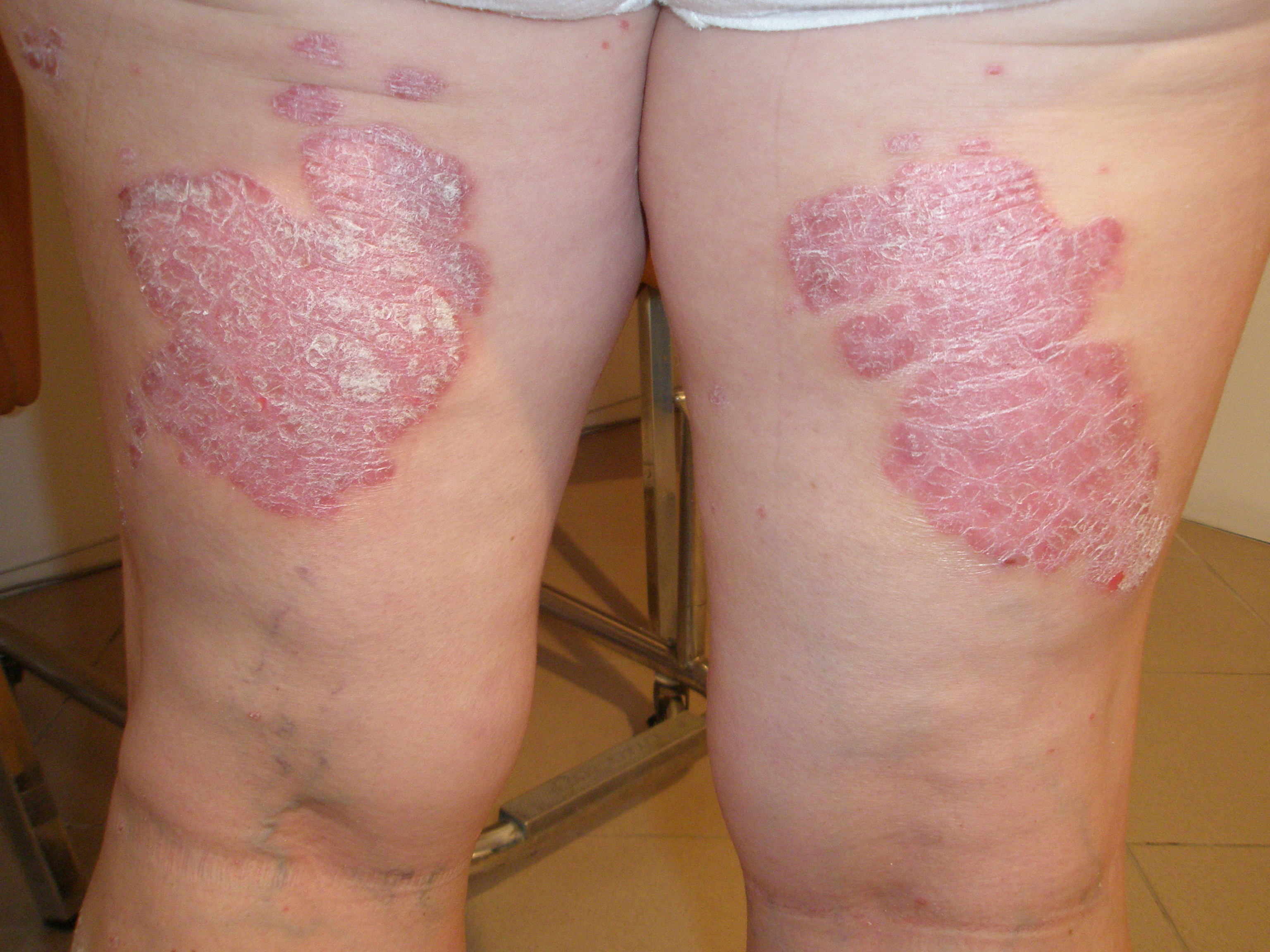 dermatita atopica bebelusi poze cu bebelusi in burta
