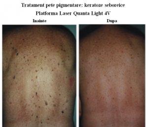 tratamentul petelor de pigment în varicoză)